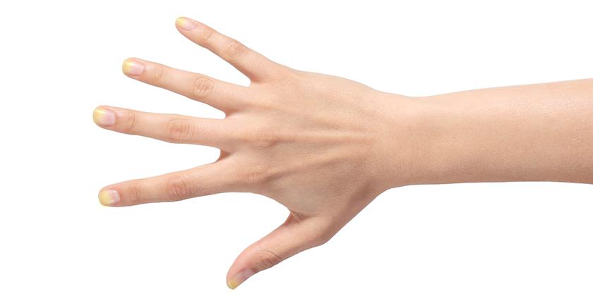 gelbe fingern gel was kann das bedeuten gesunde. Black Bedroom Furniture Sets. Home Design Ideas